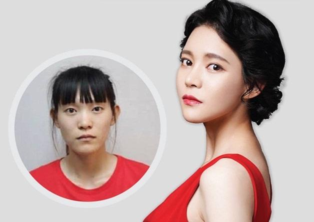 Chung Thường Châu (28 tuổi) đến từ Trung Quốc là một trong những ca khiến bác sĩ nhớ mãi. Từ bé cô đã mơ thành người mẫu chuyên nghiệp, tuy nhiên khiếm khuyết ngoại hình khiến mơ ước ấy trở nên xa vời, bất khả thi. Ở tuổi dậy thì, có giai đoạn cô bị trầm cảm vì tự ti, mặc cảm. Không nỡ nhìn con gái sống trong u uất, bố của Thường Châu đã gom góp khắp nơi được 48.000 USD để đưa cô đến Hàn Quốc thẩm mỹ. Sau hai tháng, cô quay lại Trung Quốc khi sức khoẻ ổn định. Xuất hiện với diện mạo khác biệt, ngay cả mẹ cô cũng không nhận ra con gái mình.Hiện Chung Thường Châu là trưởng phòng tín dụng của một ngân hàng nổi tiếng tại Thượng Hải. Cô cũng thường xuyên làm người mẫu ảnh. Sau kết hôn vớigiám đốc mộtbệnh viện, cô sinh được bé gái gần hai tuổi.