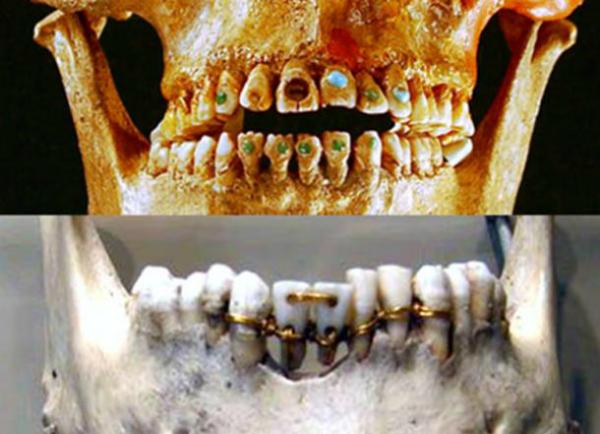 Răng nạm ngọc và răng xỏ dây vàng được thực hiện dưới bàn tay lành nghề của nhữngthợ thủ công thời cổ đại. Ảnh: AO