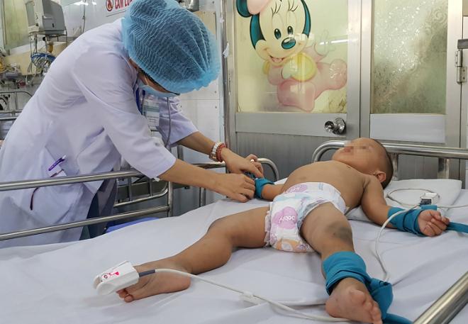Nhiều trẻ đang tỉnh táo nhưng có thể nhanh chóng diễn tiến nặng, đòi hỏi bác sĩ phải theo dõi sát hơn. Ảnh: Lê Phương.