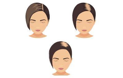 3 kiểu rụng tóc thường gặp ở nữ giới: rụng đều gây thưa tóc, đường ngôi giữa (hình cây thông), đỉnh đầu.