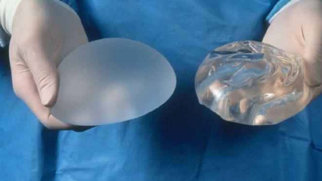 Túi ngực nhám có độ bám dính tốt vào mô ngực và chi phí phẫu thuật cao hơn túi ngực trơn. Ảnh: BC