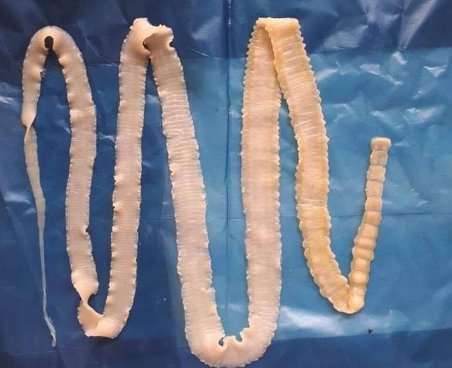 Con sán dây gắp ra từ cơ thể người nhiễm ở Bình Phước.