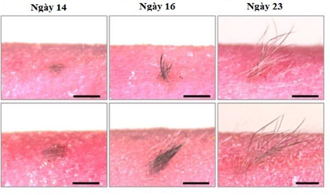 Làn da được cấy ghép trải qua các chu kỳ tăng trưởng tóc bình thường. Ảnh: CG
