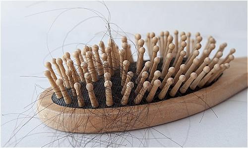 Trong các trường hợp nặng, thiếu máu dẫn đến rụng tóc. Ảnh: I-ing/Shutterstock.