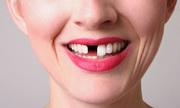 Nhặt răng gãy cắm lại vào hàm cho thiếu nữ