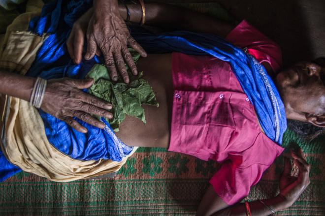 Một thai phụ Ấn Độ cố gắng gây sảy thai bằng cách xoa bóp các loại thảo mộc và dầu trên bụng. Ảnh: NPR