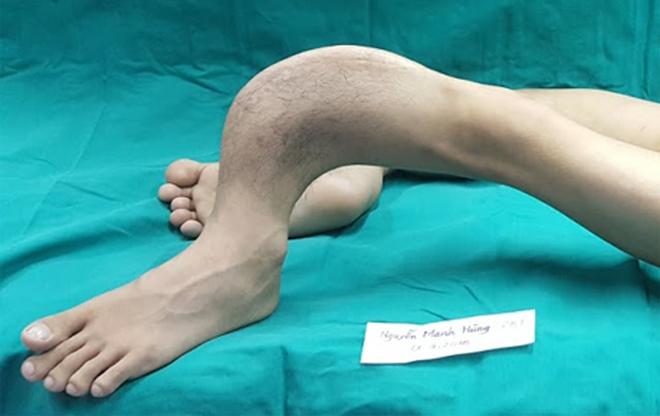 Đôi chân dị dạng của Hùng trước khi phẫu thuật. Ảnh: A.N.