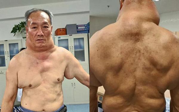 Phần cổ và thân trên bệnh nhân chứa đầy u mỡ. Ảnh: Express.co.uk