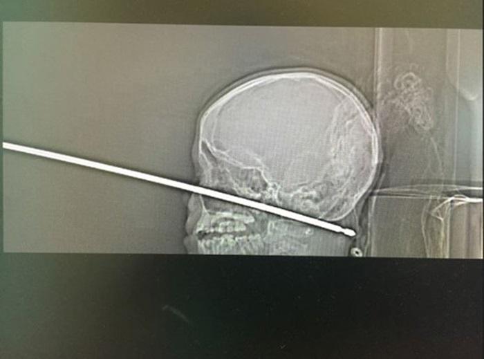 8 trường hợp y khoa kỳ lạ năm 2018