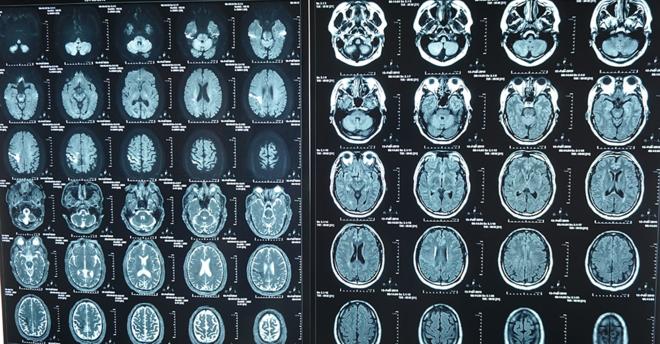 Phim chụp MRI não của bệnh nhân trước khi điều trị.