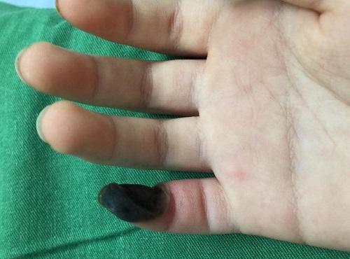 Bệnh nhi bị hoại tử ngón tay do tự chữa mụn cóc tại nhà. Ảnh: Việt Hà.