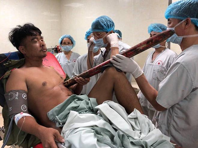 Bệnh nhân vào viện với ống sắt đâm xuyên ngực. Ảnh: Thanh Xuân.