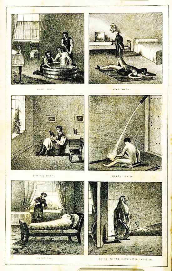 Phương pháp dùng nước chữa bệnh tâm thần của bác sĩ thế kỷ 19 - ảnh 1