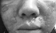 Cô gái sắp cưới bị bỏng axit do tự lột da mặt tại nhà
