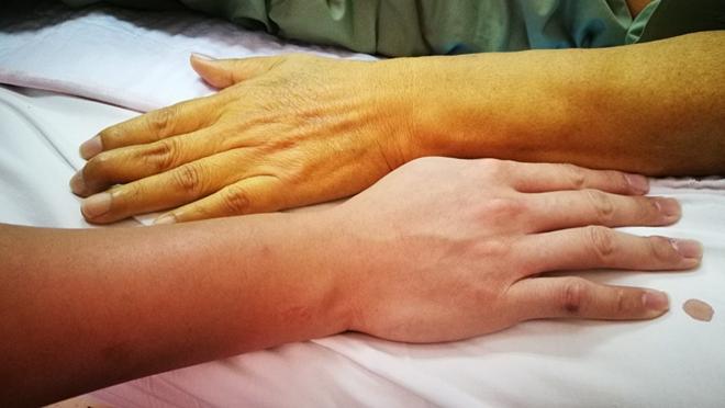 Người mắc bệnh gan có làn da vàng hơn người bình thường. Ảnh: Best Life