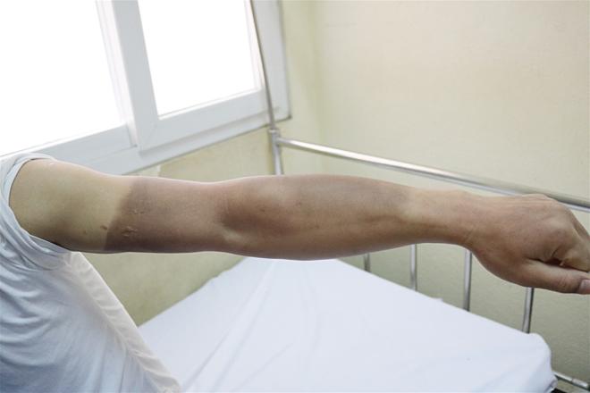 Một trong số 4 bệnh nhân bị bỏng cánh tay. Ảnh: Bệnh viện cung cấp.