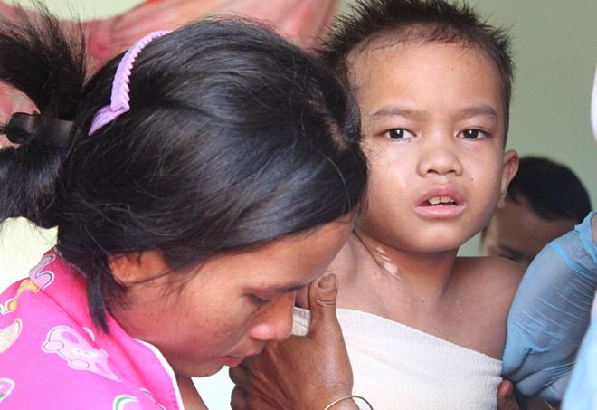 Bé trai bỏng nặng bị mẹ từ chối điều trị giữa chừng - ảnh 1