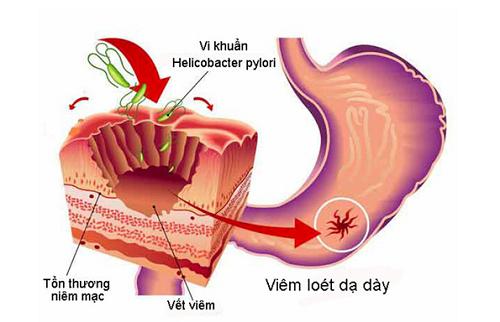 HP có thể gây viêm loét dạ dày.