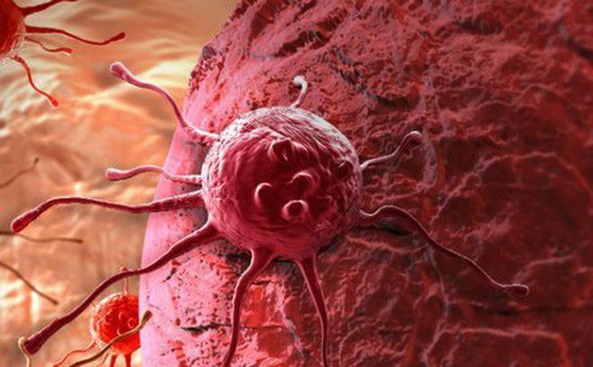 Tế bào ung thư có lực đẩy lớn gấp 200 lần tế bào khoẻ mạnh.