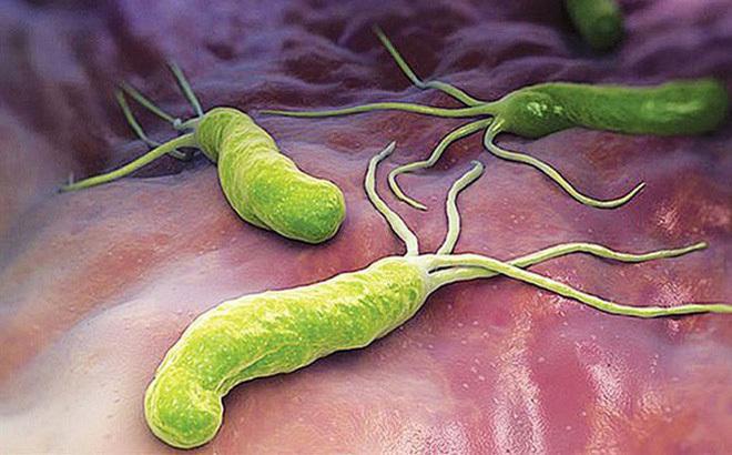 Vi khuẩn HP.