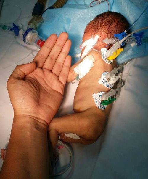 Bé chỉ nhỏ tương đương bàn tay bác sĩ từng được phẫu thuật tim tại Bệnh viện Nhi đồng 1 năm 2017. Ảnh: V.L