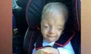 Cậu bé sống sót với nhiều dị tật bẩm sinh hiếm gặp