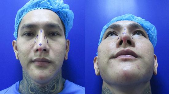 Mũi vẹo lệch, bóng đỏ đầu mũi sau khi chỉnh sửa lần 2.