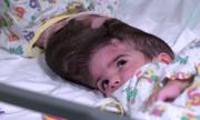 Hơn 50 giờ phẫu thuật tách cặp song sinh dính đầu