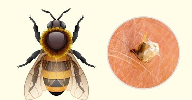 Phân biệt vết cắn của côn trùng để xử trí đúng cách