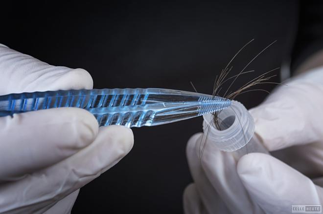 Mẫu tóc sẽ được thu trực tiếptrong  điều kiện vô trùng, bảo quản cẩn thận.