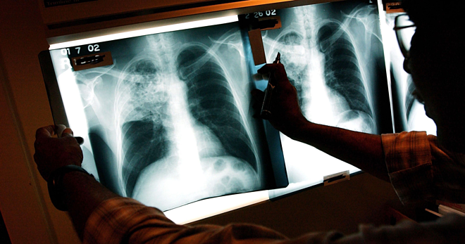Tuberculosis causes 4,400 people to die every day in the world.  Photo: Newsweek