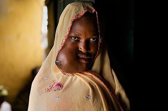 Nụ cười của cô gái sau khi được tái sinh gương mặt - ảnh 1