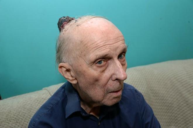 Ông cụ qua đời do chẩn đoán muộn ung thư da - ảnh 1