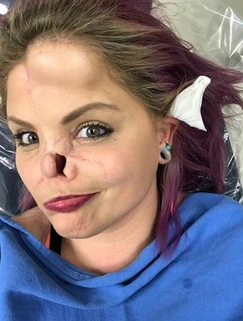 Cô gái bị chó cắn mất mũi - ảnh 1