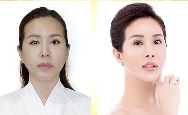 Hai cách trẻ hóa da không phẫu thuật cho tuổi ngoài 30 - ảnh 2