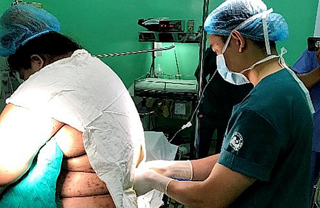 Kíp mổ chọn phương pháp gây tê tủy sống cho sản phụ. Ảnh bệnh viện cung cấp.