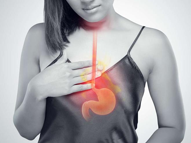 Trào ngược dạ dày thực quản là bệnh gì? - ảnh 1