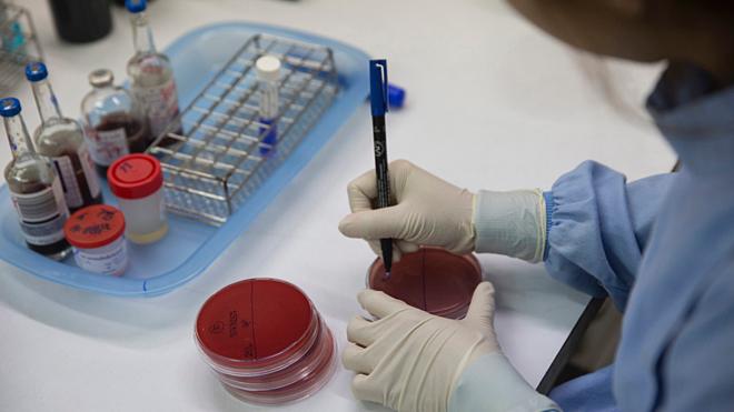 Chẩn đoán bệnh Whitmorechính xác bệnh phải dựa trên các xét nghiệm phân lập và định danh vi khuẩn trong các mẫu bệnh phẩm máu, mủ, đờm, nước tiểu, hoặc dịch não tủy. Ảnh: