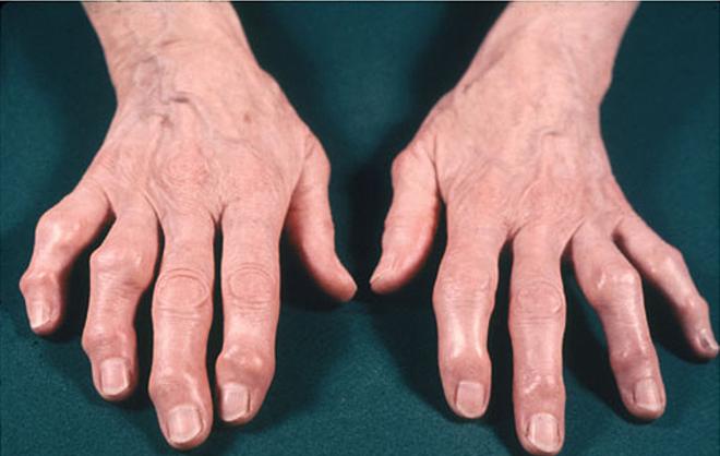 Phòng tránh bệnh xương khớp như thế nào? - ảnh 2