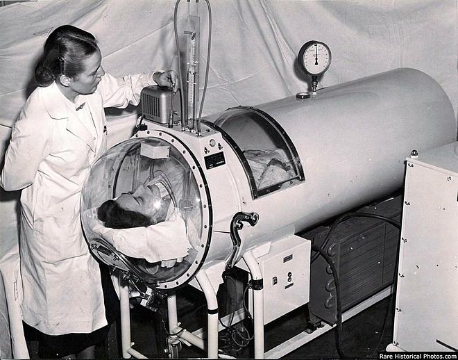 Bệnh nhân bại liệt được điều trị trong phổi sắt. Ảnh: E Squared Research