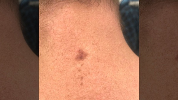 Vết tan nhang sau gáy Ryan Glossop.