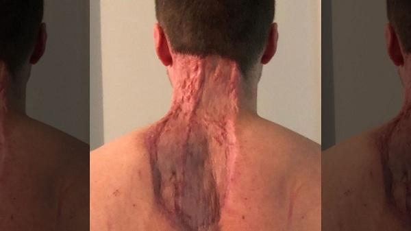 Vết sẹo sau phẫu thuật của Ryan.