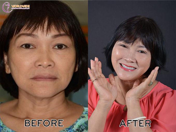 Chuyên gia chia sẻ giải pháp cho người mất răng toàn hàm - ảnh 2