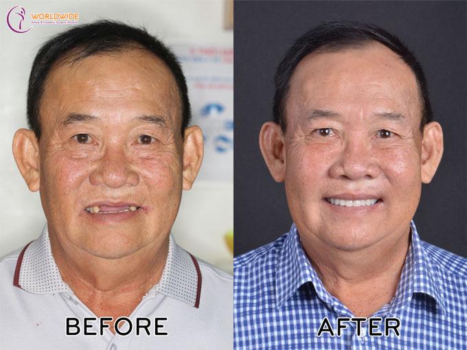 Chuyên gia chia sẻ giải pháp cho người mất răng toàn hàm - ảnh 3