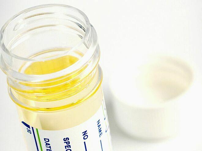 Xét nghiệm nước tiểu tầm soát ung thư cổ tử cung - ảnh 1
