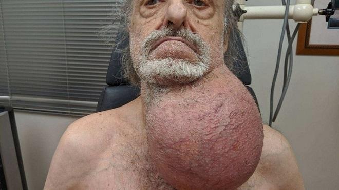Khối u cổ to bằng cái đầu người đàn ông - ảnh 1