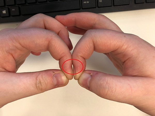 Giữa hai ngón tay người khỏe mạnh xuất hiện khoảng trống kim cương. Ảnh: Metro