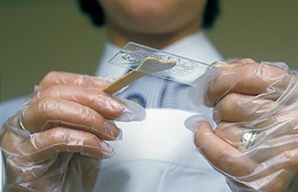 Phụ nữcó thể được chẩn đoán nhiễm HPV qua kếtquả kiểm tra phết tế nào âm đạo (PAP) bất thường. Ảnh: Designntrend.