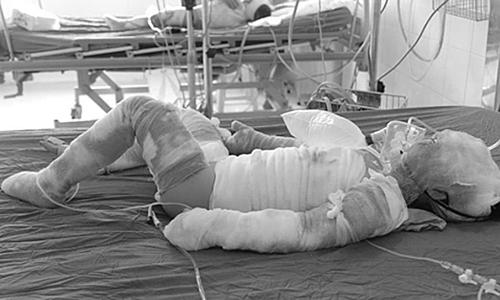 Một bệnh nhi được điều trị tại Bệnh viện Bỏng quốc gia Lê Hữu Trác. Ảnh: Thanh Hằng.