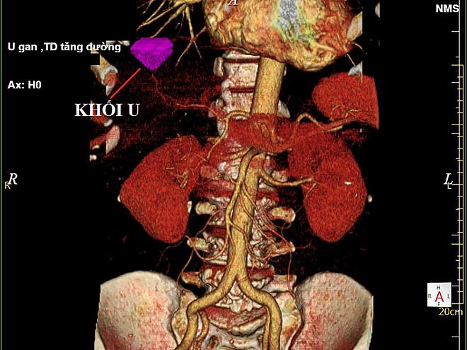 Khối u ác tính (màu tím) trong gan bệnh nhân Hùng. Ảnh: L.Q